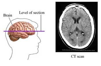 a CT scan can take images of sections of a patient's brain