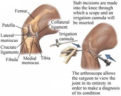 stab incisions are made into the knee with a scope to allow the surgeon to make a diagnosis by viewing the joint in its entirety