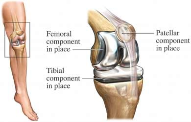 a knee replacement can include femoral, tibial, and patellar components